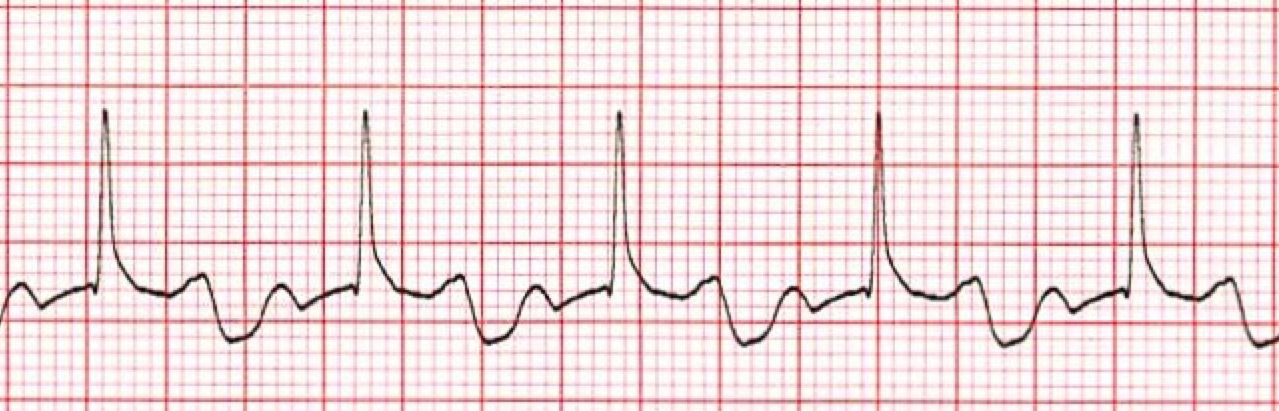 1st Degree AV Heart Block ECG