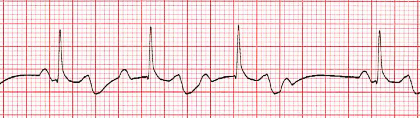 2nd Degree (Mobitz type 1) AV Heart Block ECG