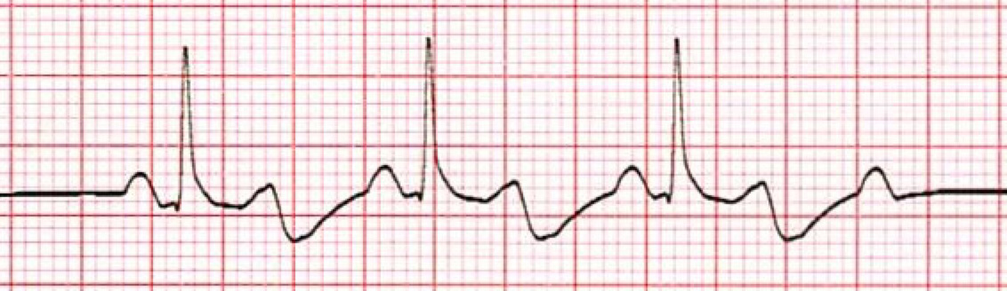 2nd Degree (Mobitz type 2) AV Heart Block ECG