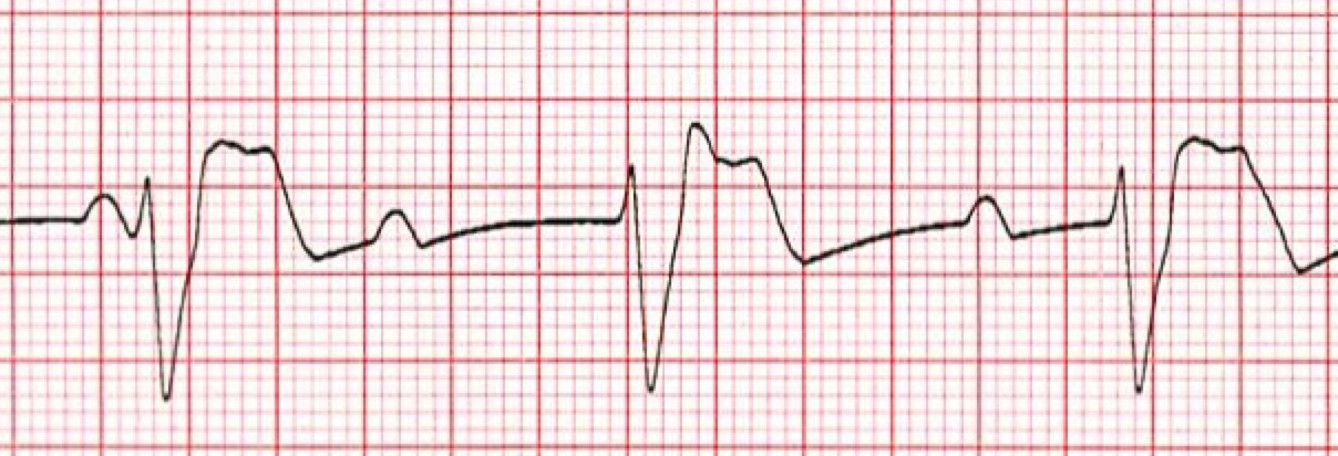 3rd Degree AV Heart Block ECG