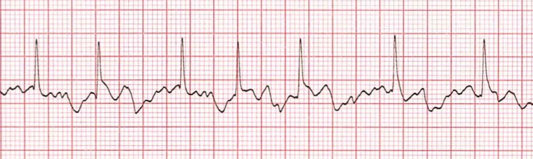 Atrial Fibrillation ECG/EKG