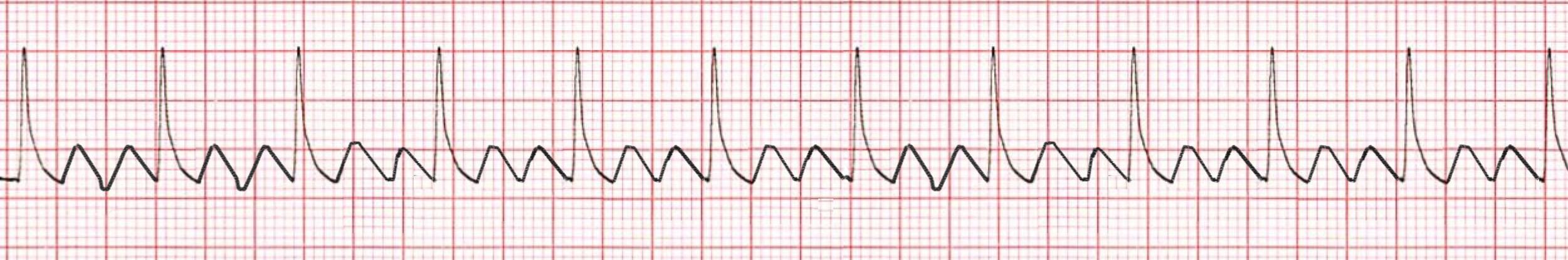 Atrial Flutter ECG/EKG
