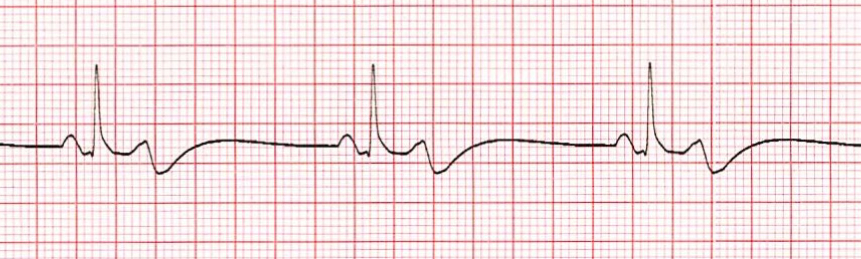Bradycardia ECG/EKG