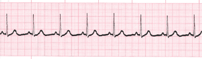 Normal Sinus Rhythm ECG/EKG