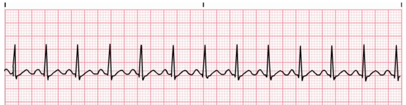 Sinus Tachycardia ECG