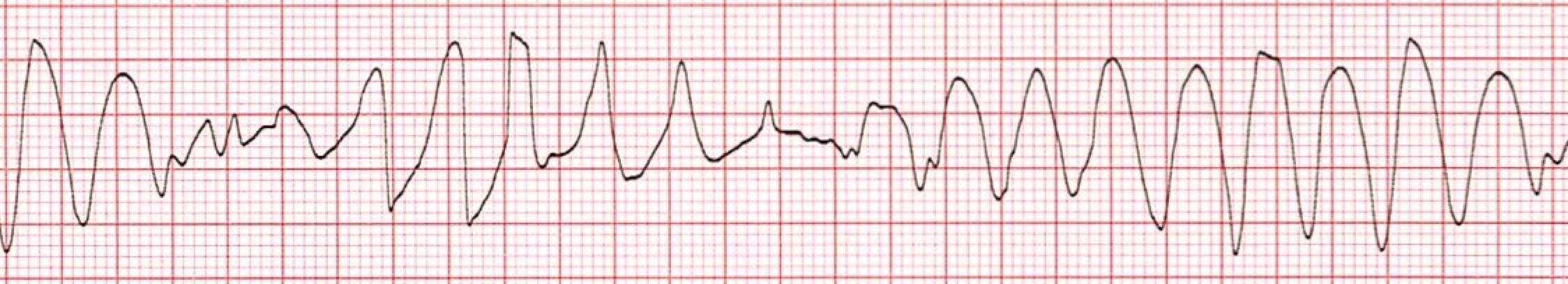 Wide Complex Tachycardia Training Acls Cardiac Rhythms Video Proacls